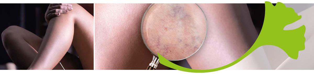 """Artikel im Praxis Magazin: """"Venenerkrankungen – Neue phytotherapeutische Ansätze"""""""
